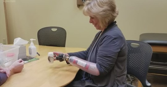 Prosthesis Aids Woman Who Lost Her Hand to MRSA Infection
