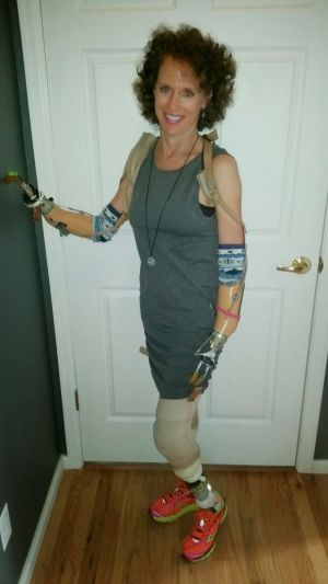 Christine Lentz: Living A Full Life With Multiple Limb Loss