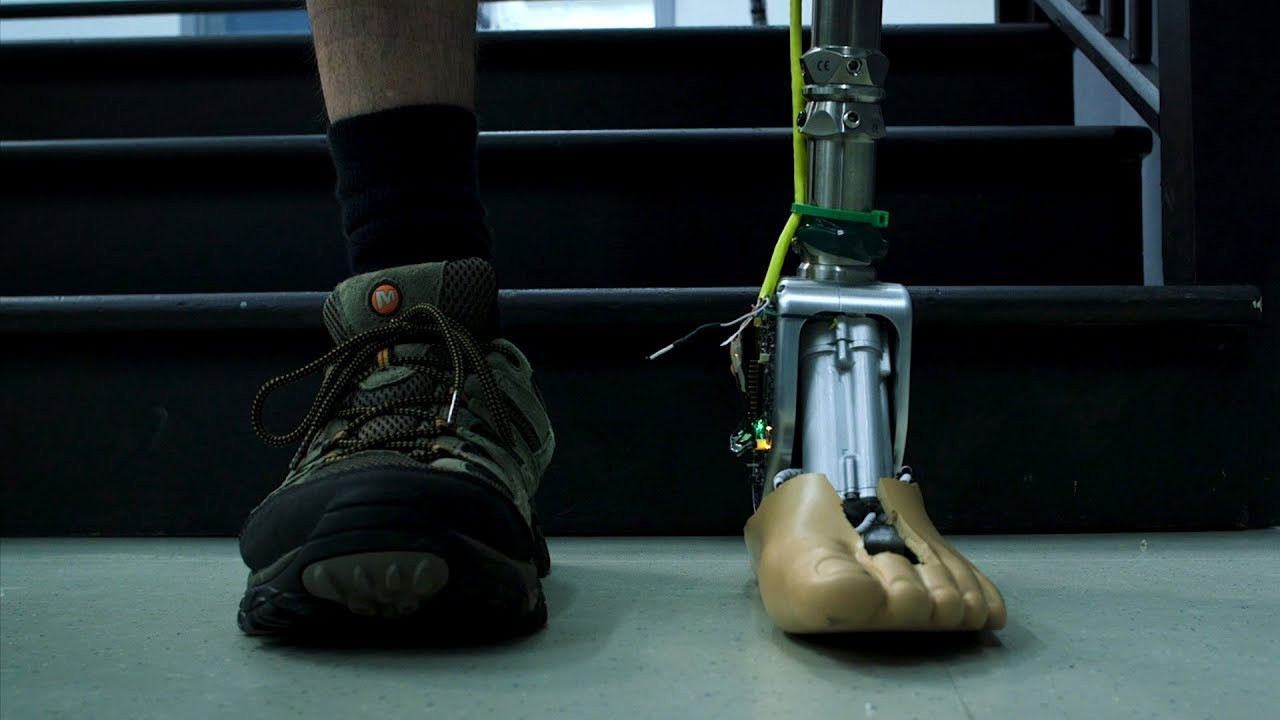 Prosthetic Ankle Responds to Gait and Terrain