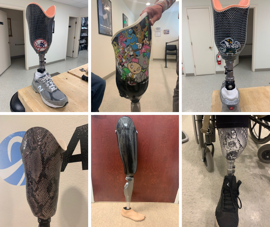 images/Collage-Ability-Prosthetics.png